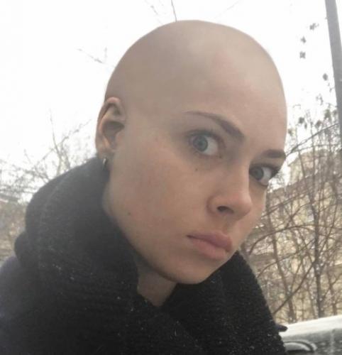 Фанаты лысой Самбурской обеспокоены ее психическим здоровьем